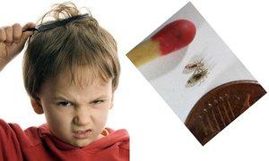Лечение вшей в домашних условиях